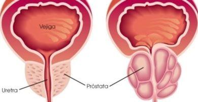alimentos que desinflaman la prostata